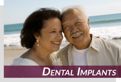 sunnyvale dental implants patients on beach